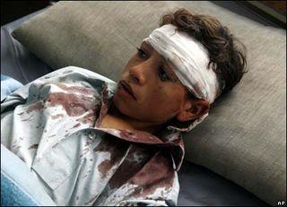 Afghan bomb victim 2007