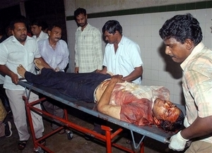 Victim_of_india_bombing_2007825