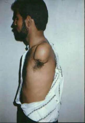Iraqi_torture_victim_3