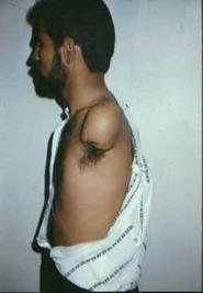 suddam hussein torture